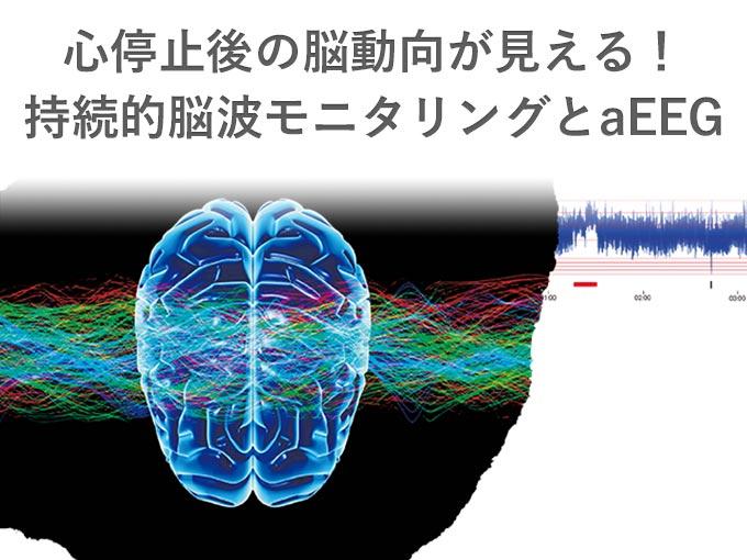 第42回日本集中治療医学会学術集会 イブニングセミナー「心停止後の脳動向が見える!持続的脳波モニタリングとaEEG」