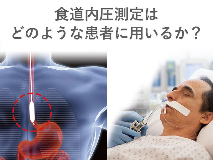 第37回日本呼吸療法医学会学術集会 ランチョンセミナー6「食道内圧測定はどのような患者に用いるか?」