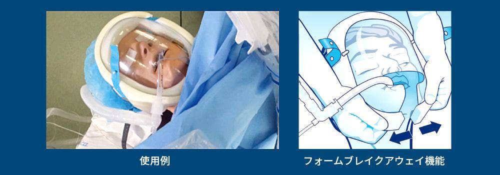 術中患者保護シールド セービングアイ