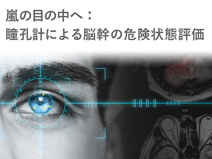 第46回 日本集中治療医学会学術集会 教育セミナー  「嵐の目の中へ:瞳孔計による脳幹の危険状態の評価」 ご報告